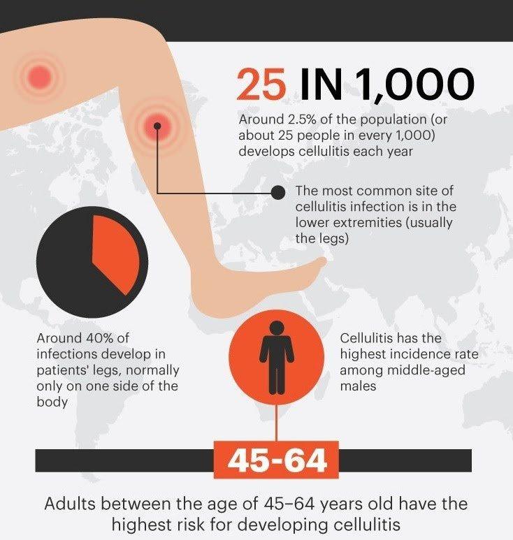 antara selulitis dan gula darah diabetes